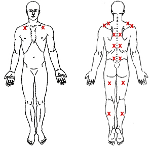pressure point therapy st louis